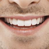 sbiancamento-dentale-Studio-Benzi
