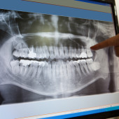 digital-dental-x-ray-of-human-jaw